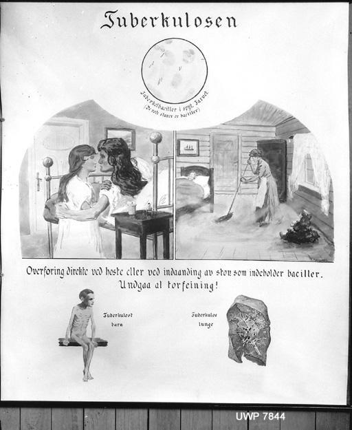 Plakat om tuberkulose – Barnas Vel Dr. Schiøtz. Fotograf: Severin Worm-Petersen, 1923. Norsk Teknisk Museum, Lisens: CC BY